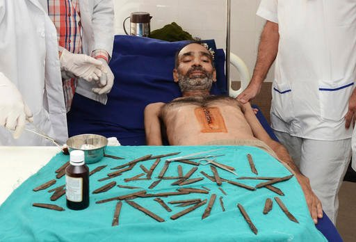 Police constable Surjeet Singh, lies under a table displaying the 40 knifes removed from his stomach recuperates in a hospital in Amritsar, India.