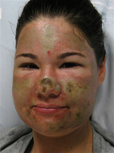 This image provided by the Legacy Emanuel Medical Center shows Bethany Storro prior to surgery.