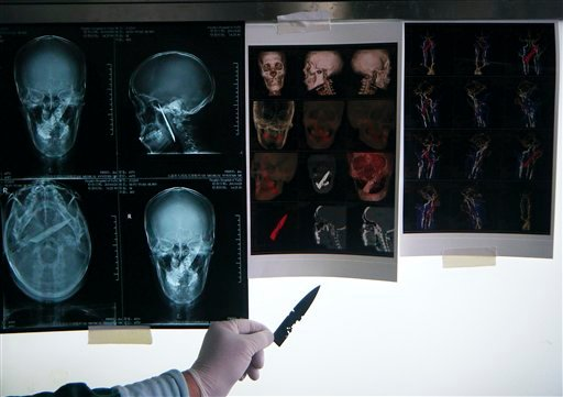 In this photo taken on Sunday, Feb. 13, 2011, a doctor shows a 4-inch (10-centimeter) knife which has been removed from the skull of Li Fuyan against the x-ray scan at the People's Hospital in Yuxi in southwest China's Yunnan province.