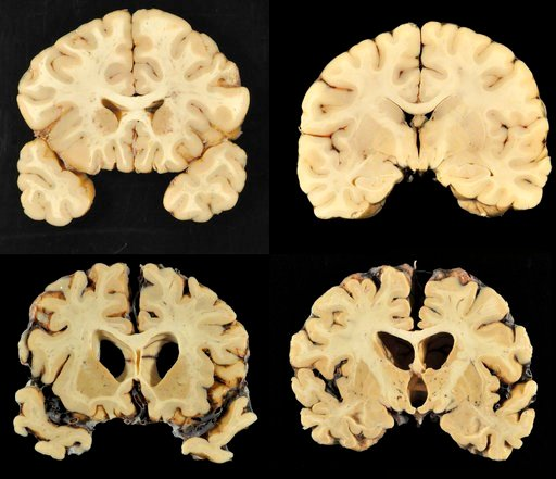 This combination of photos provided by Boston University shows sections from a normal brain, top, and from the brain of former University of Texas football player Greg Ploetz, bottom, in stage IV of chronic traumatic encephalopathy. Dr. Ann McKee/BU, AP