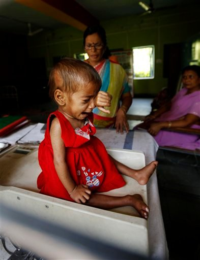 In this photo taken Wednesday, April 13, 2011, one year and 9-month-old Sania cries as she is weighed only 5 kilograms (11 pounds) on a scale after eating a meal at a ward for malnourished children at a government hospital.
