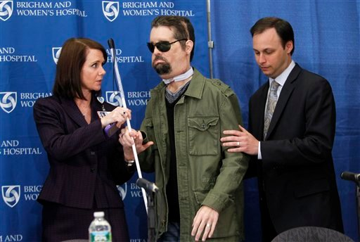 Face transplant recipient Dallas Wiens, of Fort Worth, Texas, center, is assisted to his seat by Brigham and Women's Hospital spokesperson Erin McDonough, left, and Dr. Jeffrey Janis, right, before the start of a news conference in Boston.