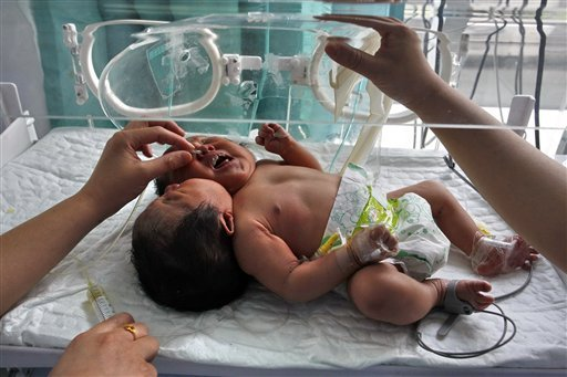 In this photo taken Monday, May 9, 2011, medical workers attend to conjoined twin babies with a single body and two heads born on May 5 in a hospital in Suining city in southwestern China's Sichuan province.