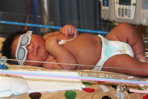 This photo provided by Good Shepherd Medical Center Marketing Department shows JaMichael Brown Monday, July 11, 2011, in the hospital's neonatal care unit in Longview, Texas.