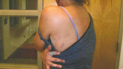 Ex-wife's injuries from an alleged attack by Shacknai's guard dog (Sept. 2008 photo)
