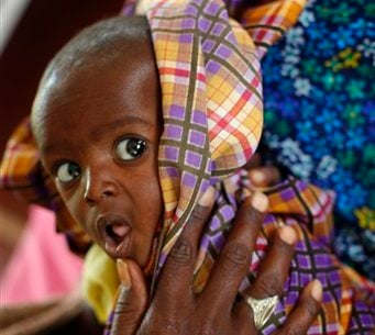 Minhaj Gedi Farah, a seven-month-old child who arrived with a weight of 3.4 kilos Tuesday, July 26, 201 at the International Rescue Committee hospital in the Eastern Kenyan village of Hagadera near Dadaab, 100 kms (60 miles) from the Somali border. (AP)