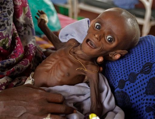 Seven month old Minhaj Gedi Farah, in this file photo dated Tuesday July 26, 2011, being treated in a field hospital of the International Rescue Committee, IRC, in Dadaab, Kenya. Only 10-days ago, Minhaj Gedi Farah was too weak to cry. (AP)