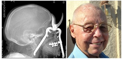 July 30, 2011 file image from the University Medical Center in Tucson, shows a CT scan of a pair of pruning shears embedded in the head of an 86-year-old Leroy Luetscher. (AP Photo/left University Medical Center and right Regina Ford/Green Valley News)