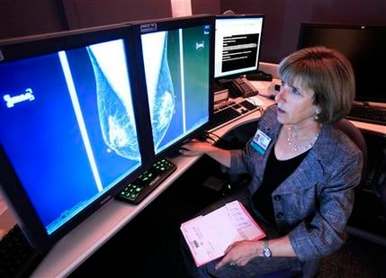 Dr. Karen Lindsfor, a professor of radiology and chief of breast imaging at the University of California, Davis Medical Center, examines the mammogram of a patient with heterogeneously dense breast tissue, in Sacramento,Calif. (AP Photo/Rich Pedroncelli)