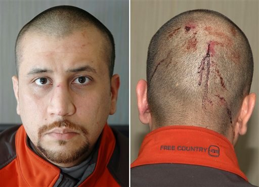 This combo made from Feb. 27, 2012 photos released by the State Attorney's Office shows George Zimmerman, the neighborhood watch volunteer who shot Trayvon Martin. (AP)