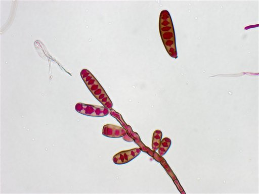 This undated image made available by The Centers for Disease Control and Prevention shows the Exserohilum rostratum fungus. (AP Photo/CDC)