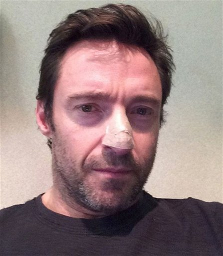 "This undated but recent selfie posted on Instagram by Hugh Jackman shows ""The Wolverine"" star with his bandaged nose. (AP)"