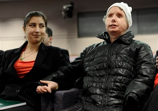 Briana Nash, left, looks at her mother, Charla Nash after she finished speaking to Connecticut legislators at a public hearing at the Legislative Office Building, Friday, March 21, 2014, in Hartford, Conn. (AP)