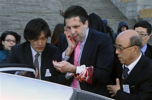 Injured U.S. Ambassador to South Korea Mark Lippert, center, gets into a car to leave for a hospital in Seoul, South Korea, Thursday, March 5, 2015. (AP)