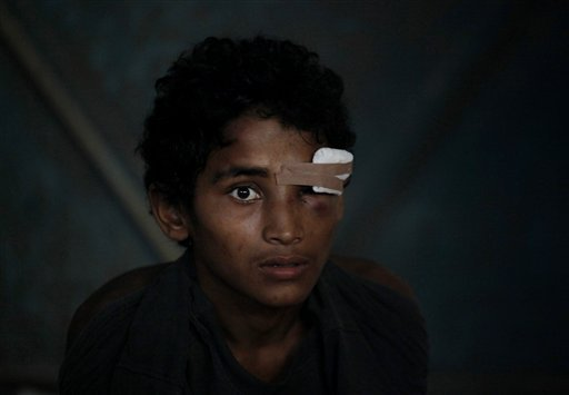 A newly arrived ethnic Rohingya youth, who said he was injured in the eye during a brawl on the boat, sits inside a temporary shelter at Kuala Langsa Port in Langsa, Aceh province, Indonesia, Friday, May 15, 2015. More than 1,000 people fleeing persecutio
