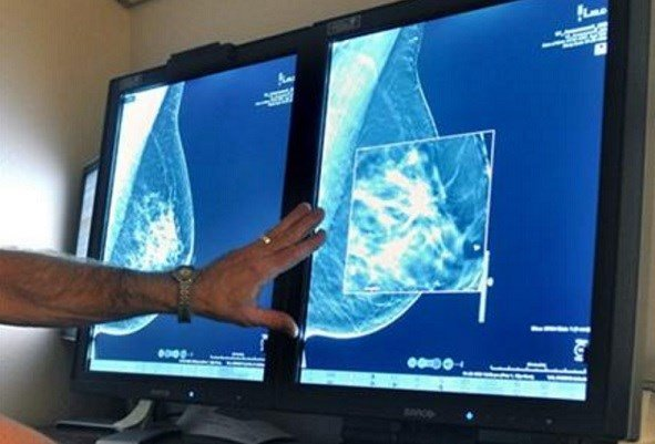 The American Cancer Society revised its advice on who should get mammograms and when, recommending annual screenings for women at age 45 instead of 40 and switching to every other year at age 55. AP