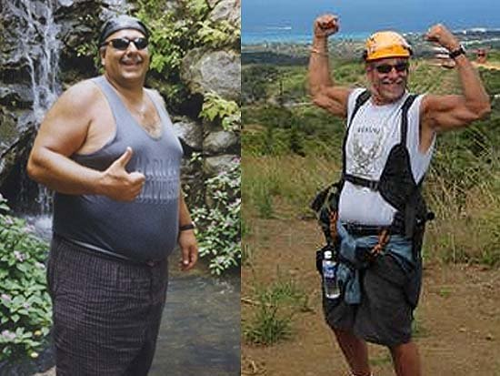 Willie DePascale  Before and After Gastric Banding