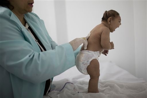 Lara, who is less then three months old and was born with microcephaly, is examined by a neurologist at the Pedro I hospital in Campina Grande, Paraiba state, Brazil, Friday, Feb. 12, 2016. Alarm in recent months over the Zika virus, which many researcher