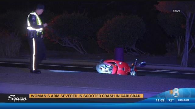 Woman S Arm Severed In Scooter Crash In Carlsbad Cbs News 8