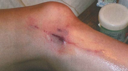 Ex-wife's injuries from an alleged attack by Shacknai's guard dog (Sept. 2006 photo)